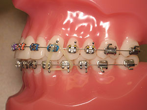 Rubber Bands And Elastics For Braces