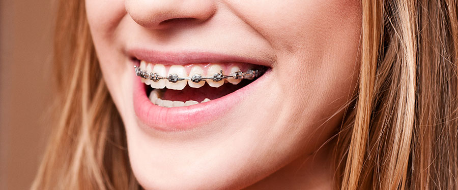 Braces Closeup