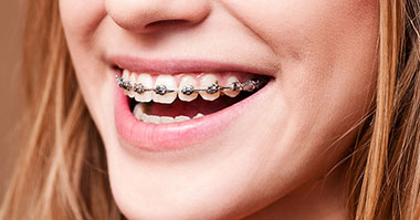 How braces are attached