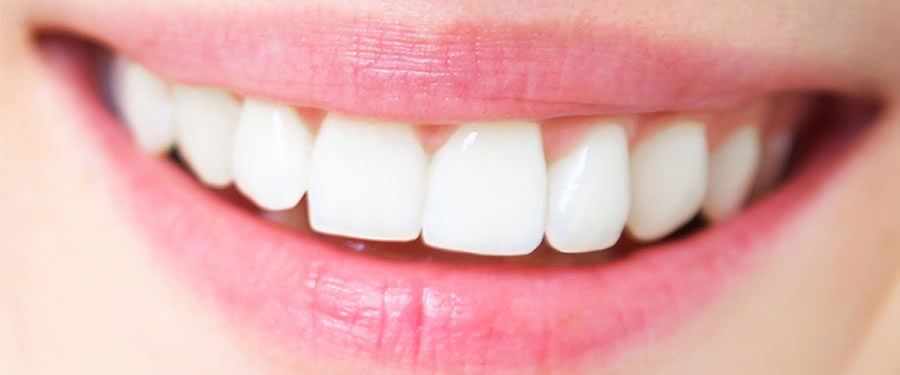 What Does How Long Do Braces Last Mean?